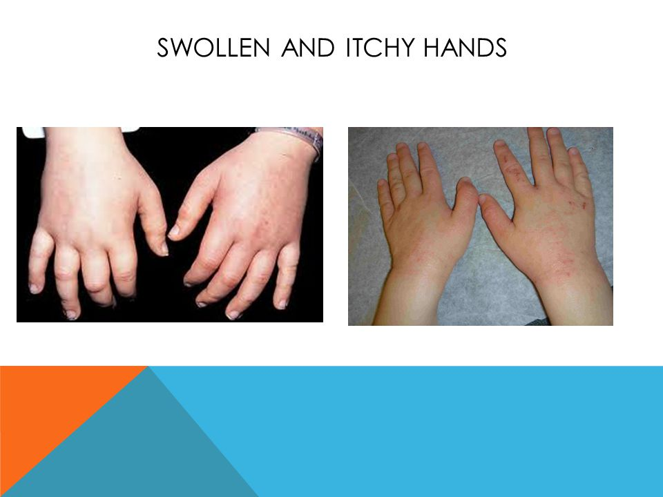 Swollen and itchy hands