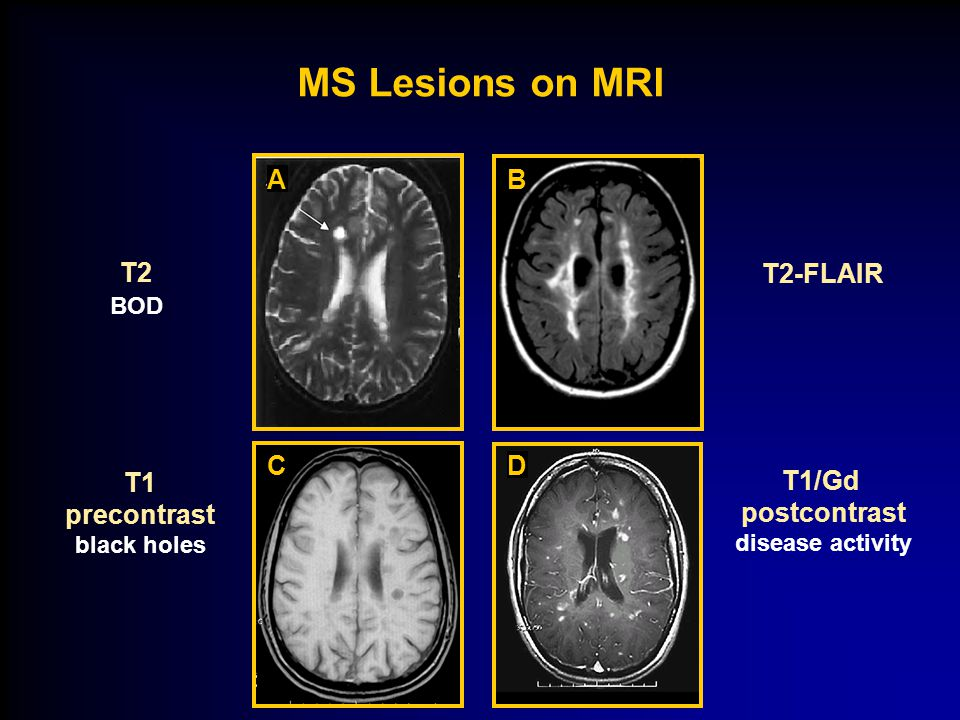 Multiple Sclerosis Disease Overview & Current Management Strategies - ppt  download