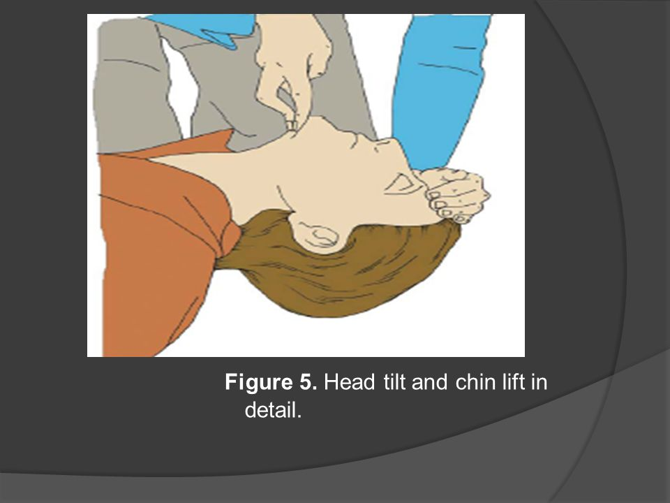 Figure 5. Head tilt and chin lift in detail.