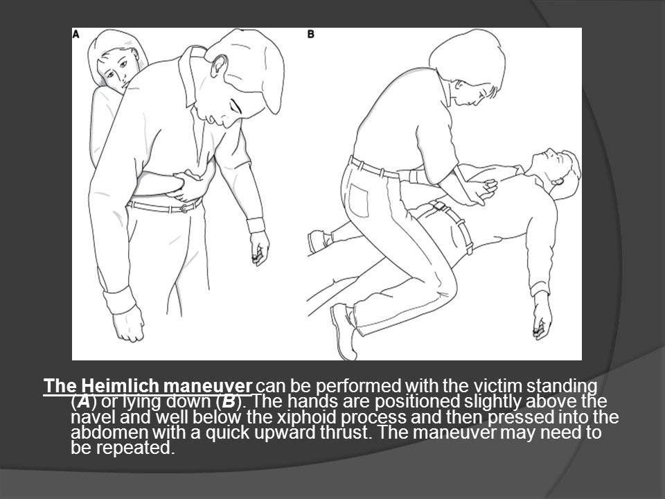 The Heimlich maneuver can be performed with the victim standing (A) or lying down (B).