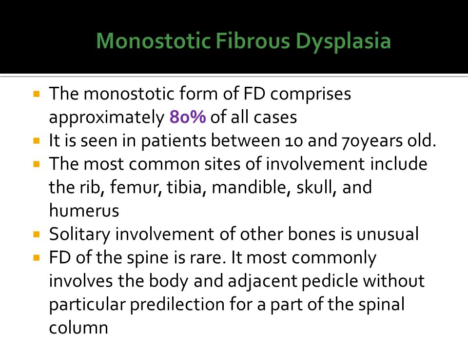 Fibrous Dysplasia Imaging Characteristics Ppt Video Online Download