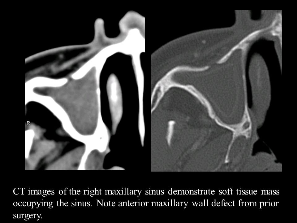 CT images of the right maxillary sinus demonstrate soft tissue mass occupying the sinus.