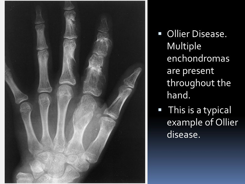 Ollier Disease. Multiple enchondromas are present throughout the hand.