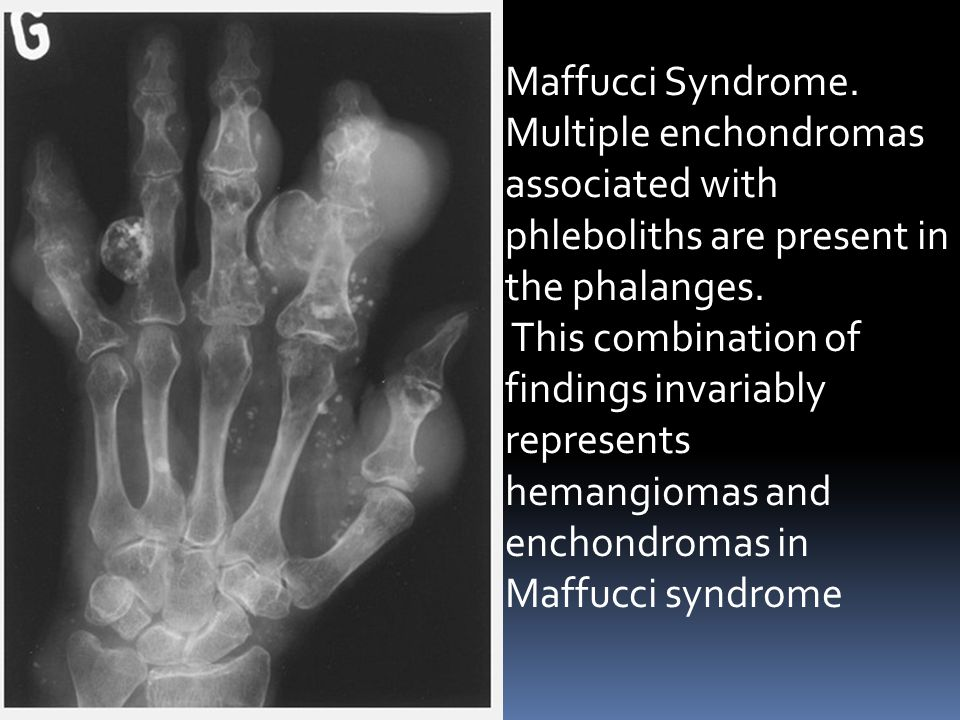 Maffucci Syndrome. Multiple enchondromas associated with phleboliths are present in the phalanges.