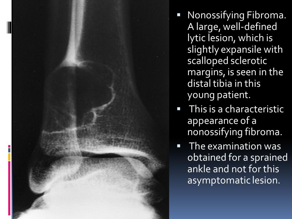 Nonossifying Fibroma. A large, well-defined lytic lesion, which is slightly expansile with scalloped sclerotic margins, is seen in the distal tibia in this young patient.