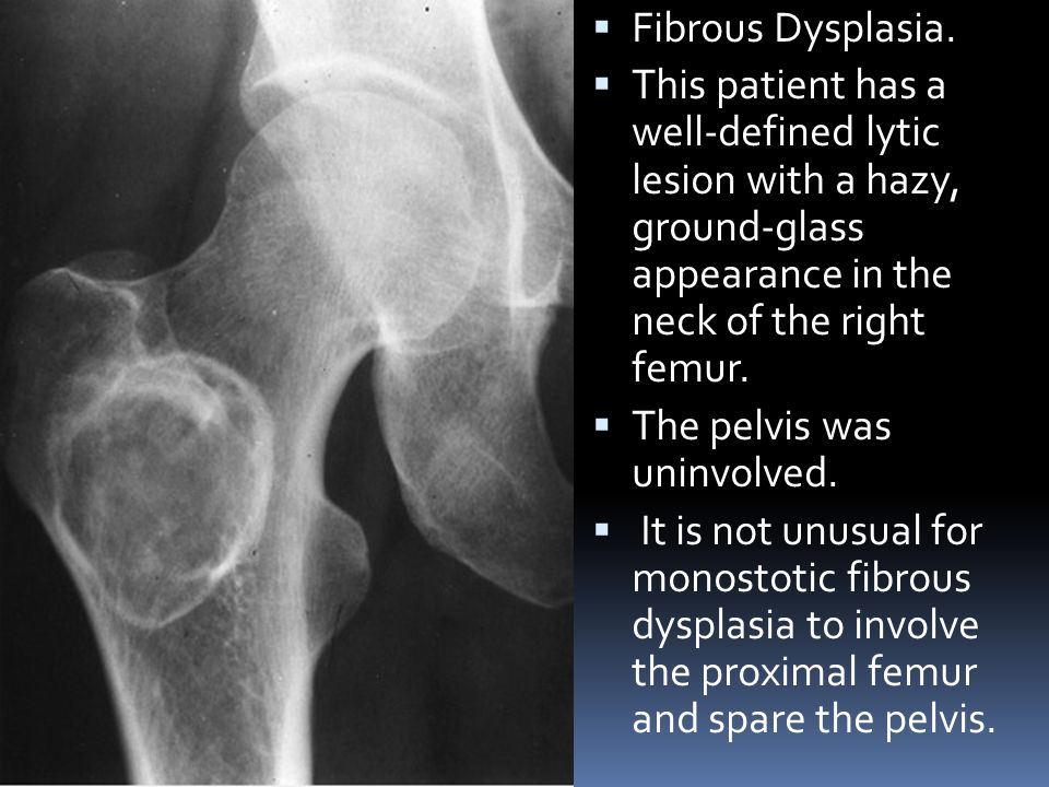 Fibrous Dysplasia. This patient has a well-defined lytic lesion with a hazy, ground-glass appearance in the neck of the right femur.