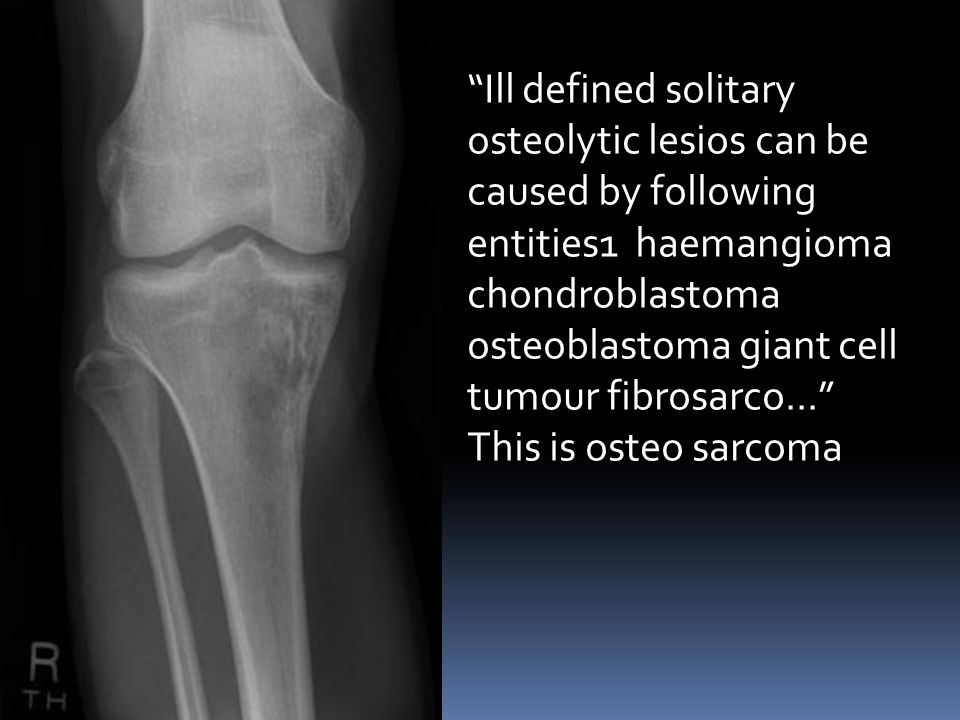 Ill defined solitary osteolytic lesios can be caused by following entities1 haemangioma chondroblastoma osteoblastoma giant cell tumour fibrosarco...