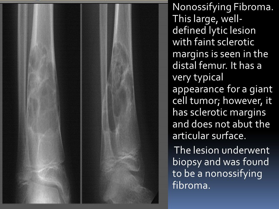 Nonossifying Fibroma. This large, well- defined lytic lesion with faint sclerotic margins is seen in the distal femur. It has a very typical appearance for a giant cell tumor; however, it has sclerotic margins and does not abut the articular surface.
