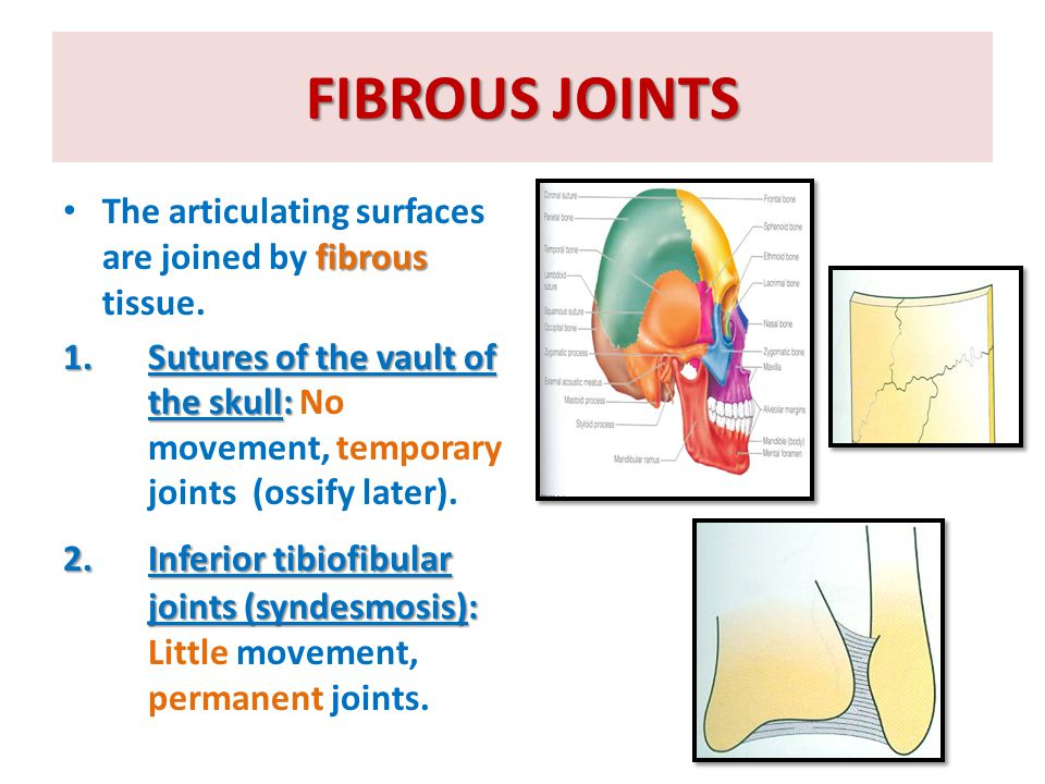 FIBROUS JOINTS The articulating surfaces are joined by fibrous tissue.