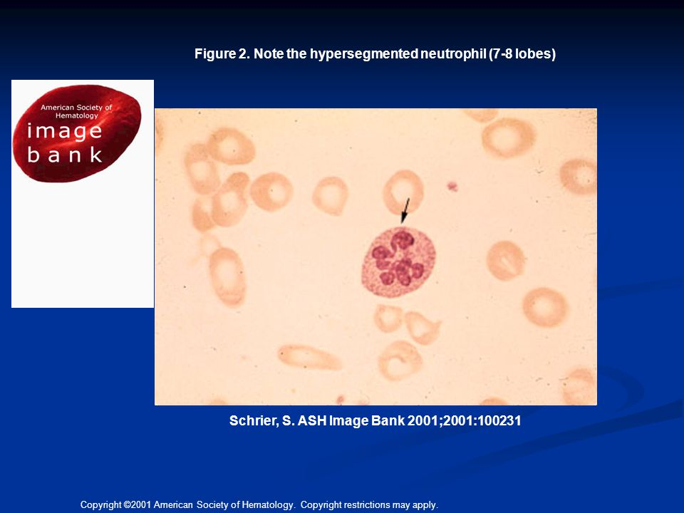 Figure 2. Note the hypersegmented neutrophil (7-8 lobes)