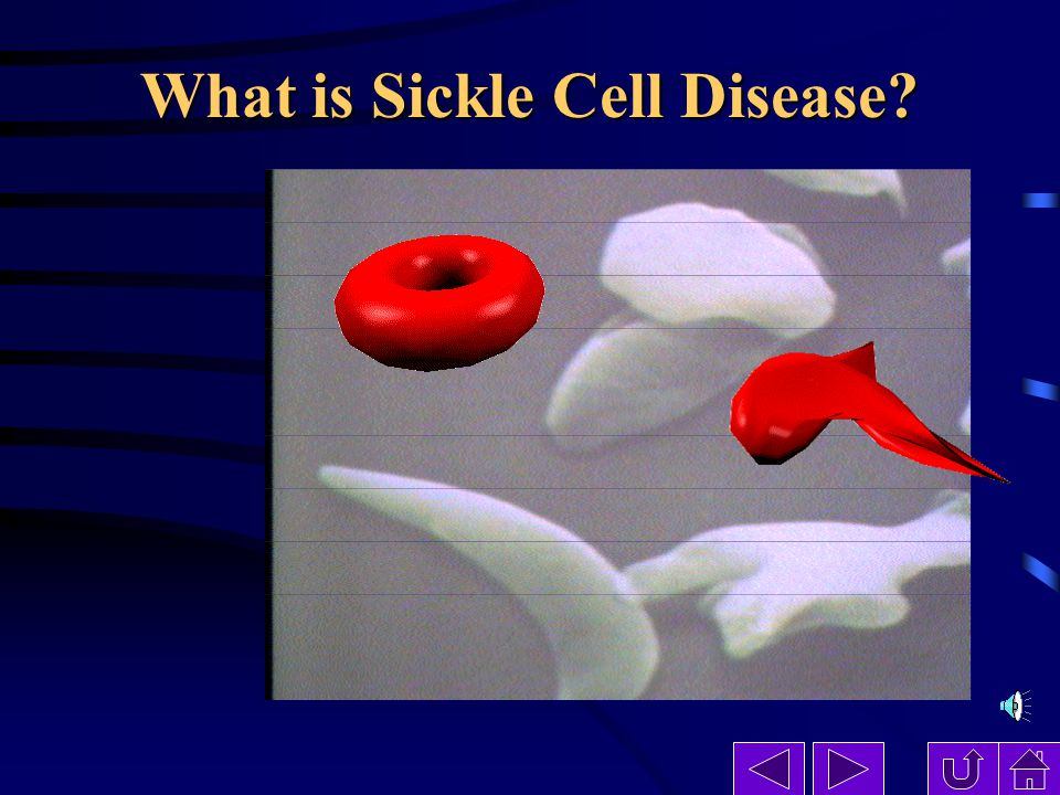 what s sikcle cell Sickle cell anemia is an autosomal recessive genetic condition where the beta-globin protein subunit of hemoglobin is misshapen, which ultimately leads to a sickle-shaped red blood cell, which is.