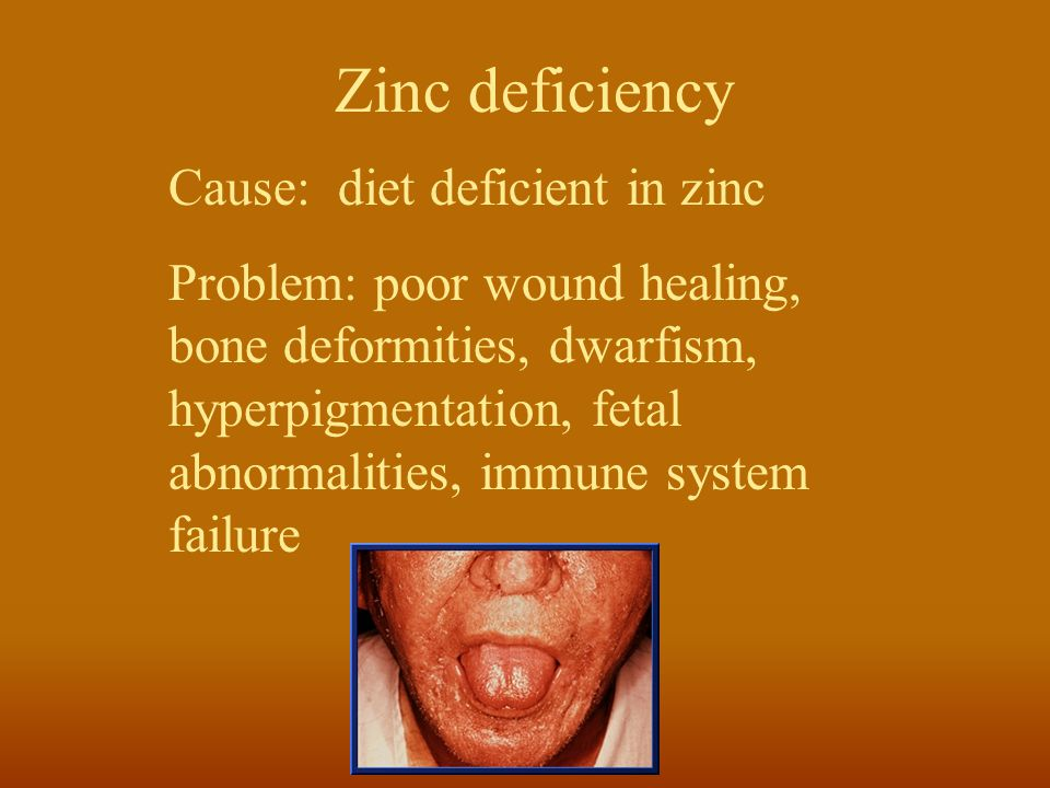 Zinc deficiency Cause: diet deficient in zinc