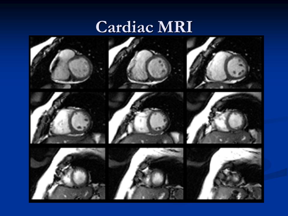 Cardiac MRI Left ventricular function is well maintained with an EF of 63%.