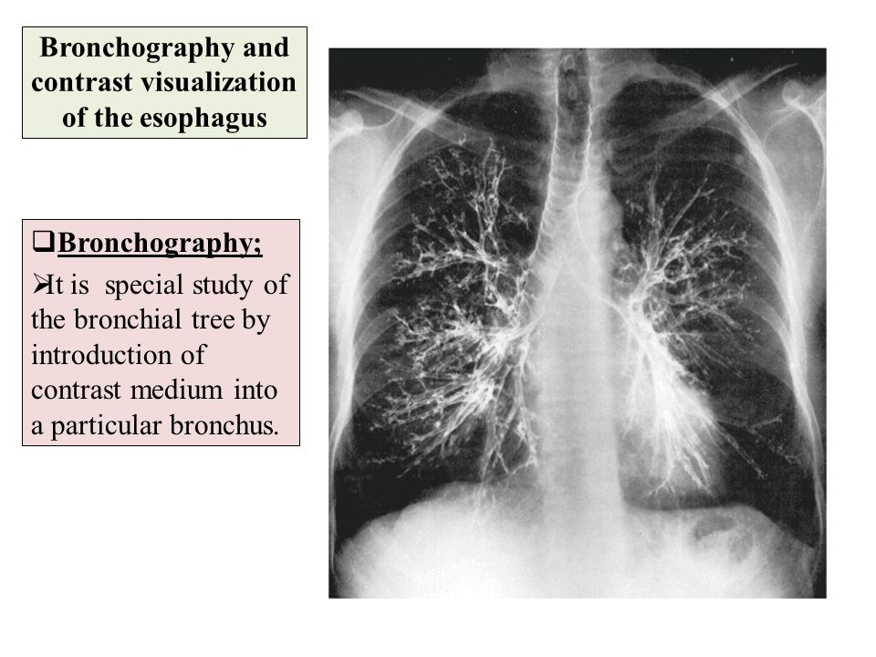 Bronchography and contrast visualization of the esophagus