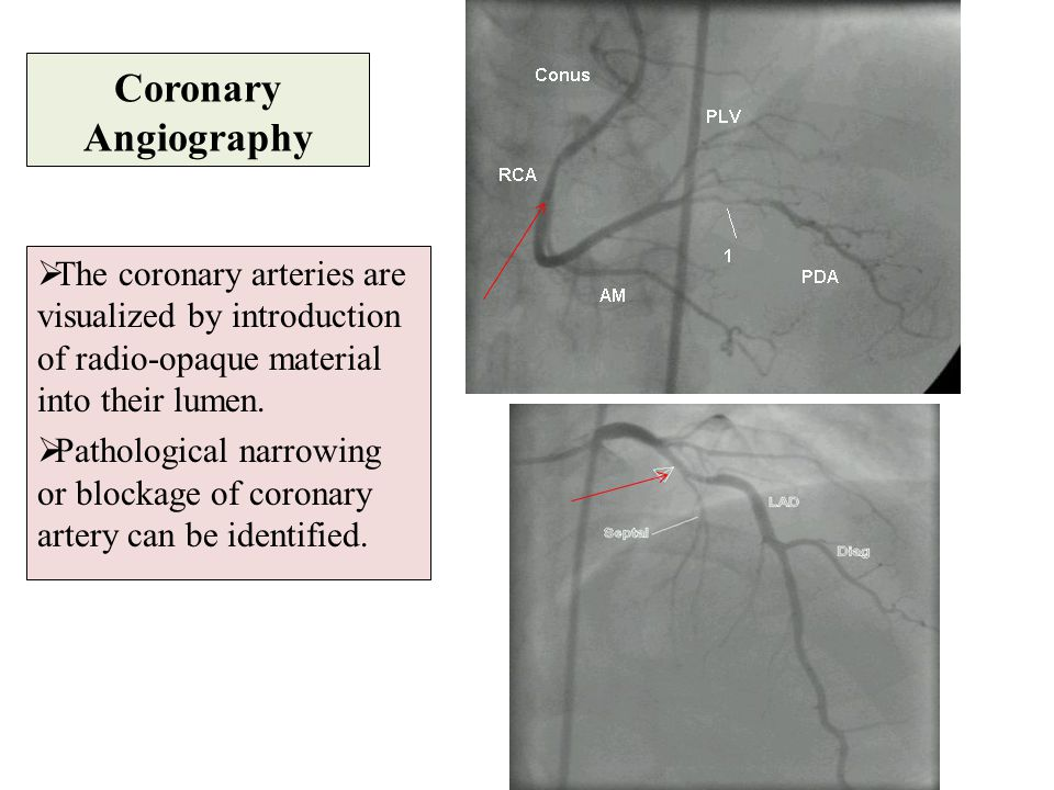 Coronary Angiography The coronary arteries are visualized by introduction of radio-opaque material into their lumen.