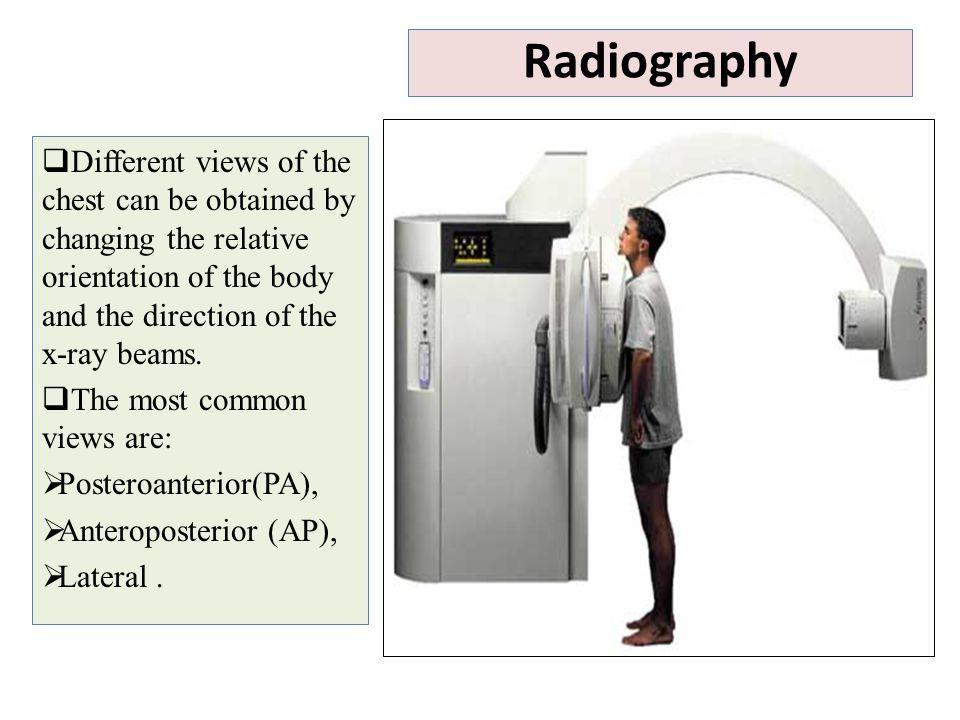 Radiography Different views of the chest can be obtained by changing the relative orientation of the body and the direction of the x-ray beams.