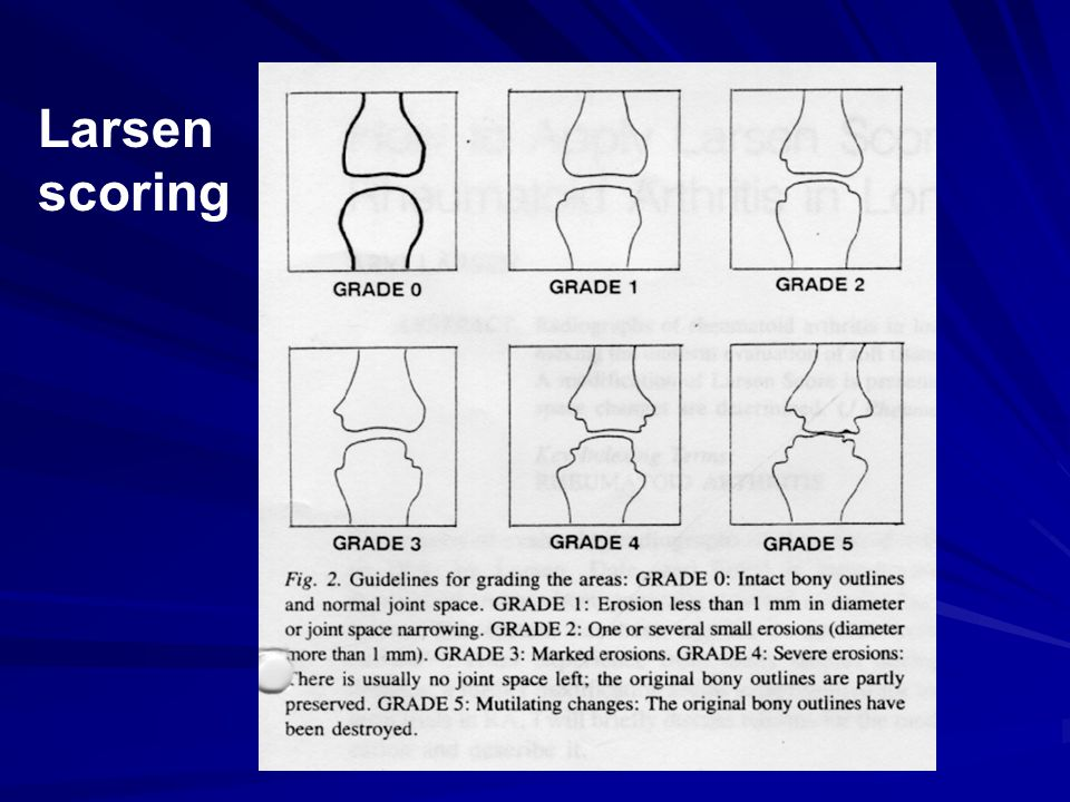 Radiographic Scoring In Rheumatoid Arthritis The Basics