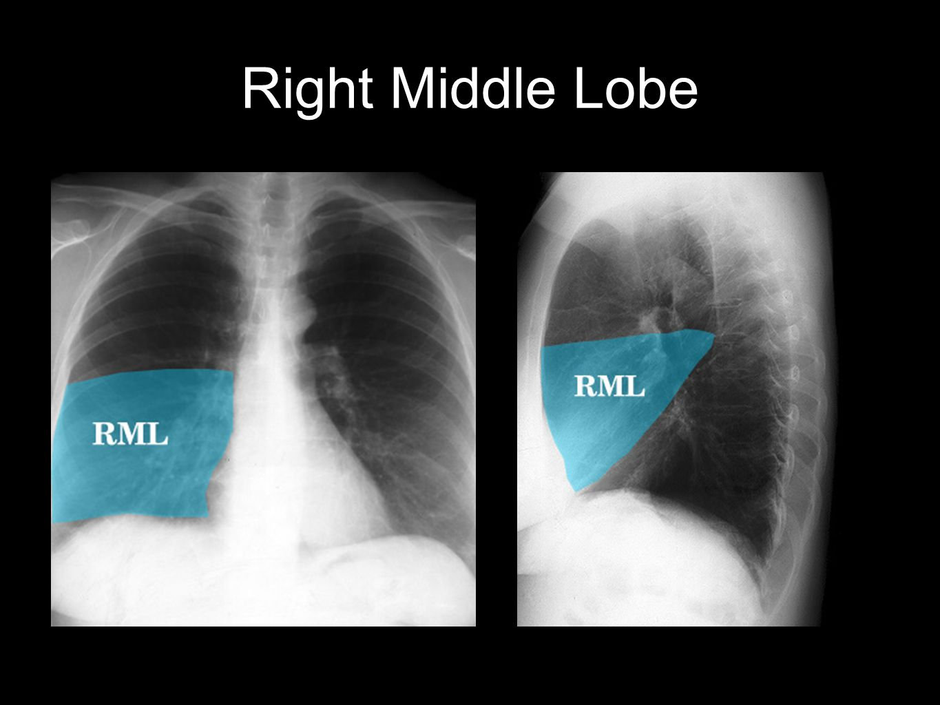 Right Middle Lobe