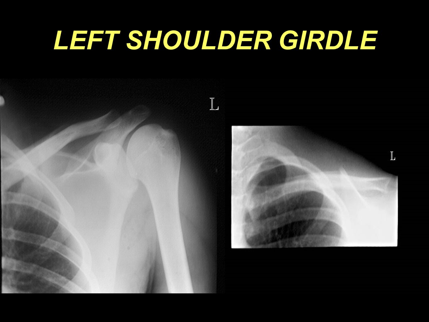 LEFT SHOULDER GIRDLE