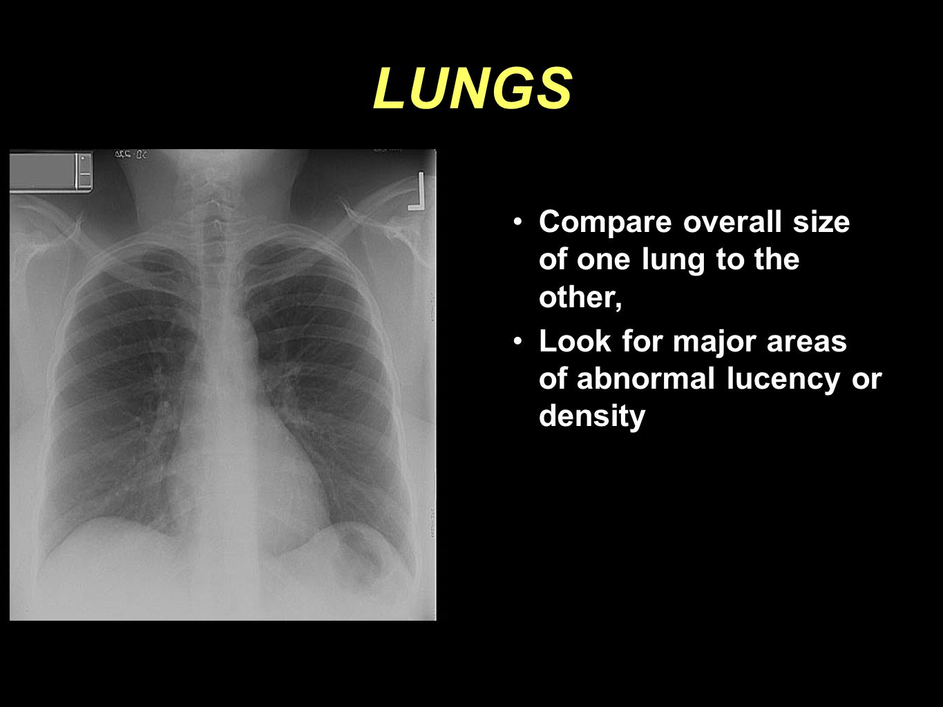LUNGS Compare overall size of one lung to the other,