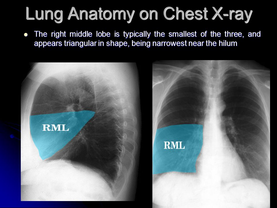 Chest Radiography Interpretation Ppt Video Online Download