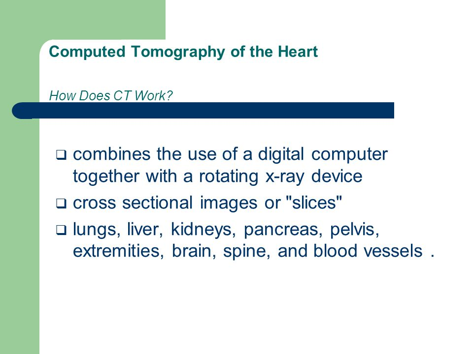 Computed Tomography of the Heart How Does CT Work