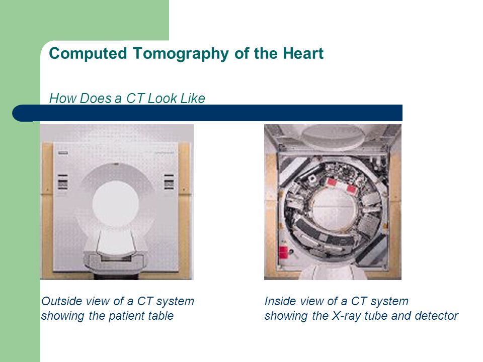 Computed Tomography of the Heart How Does a CT Look Like