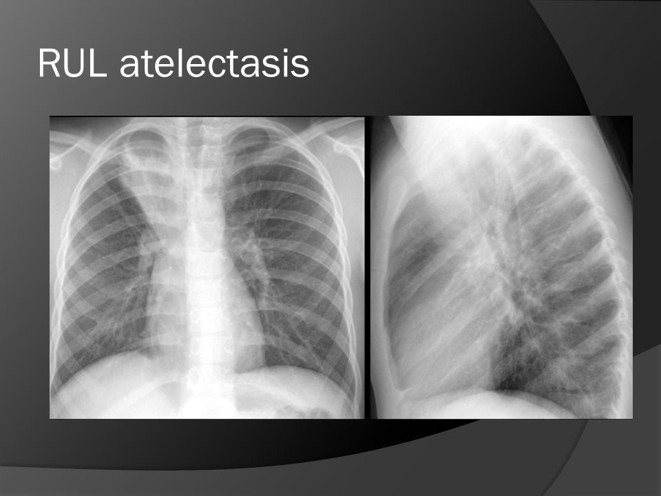 RUL atelectasis Another example