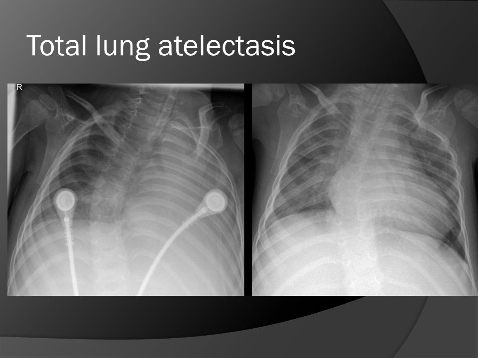 Total lung atelectasis