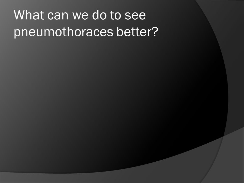 What can we do to see pneumothoraces better
