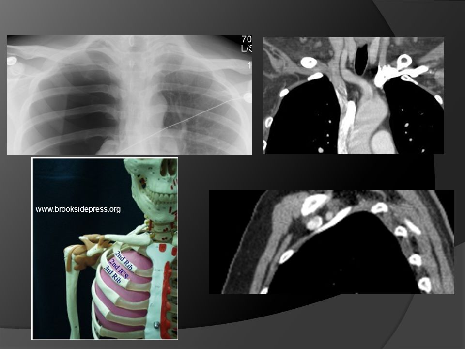 Show them where you go in on the CXR. Avoid the vessels!