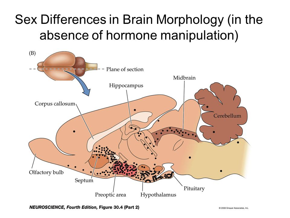 People assumes human brain sex differences are innate, research find