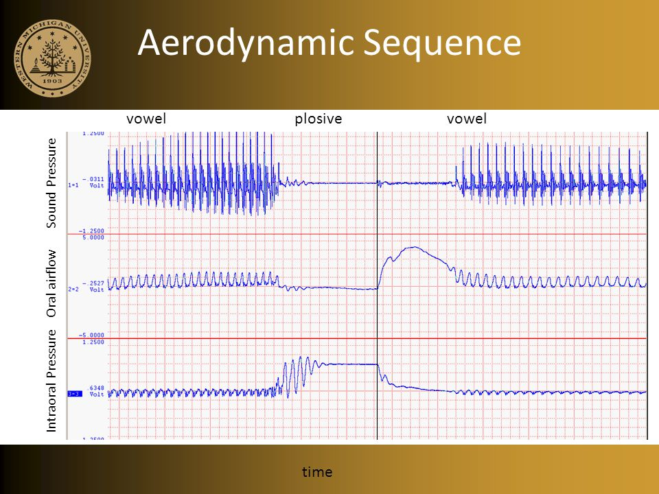 Aerodynamic Sequence vowel plosive vowel time