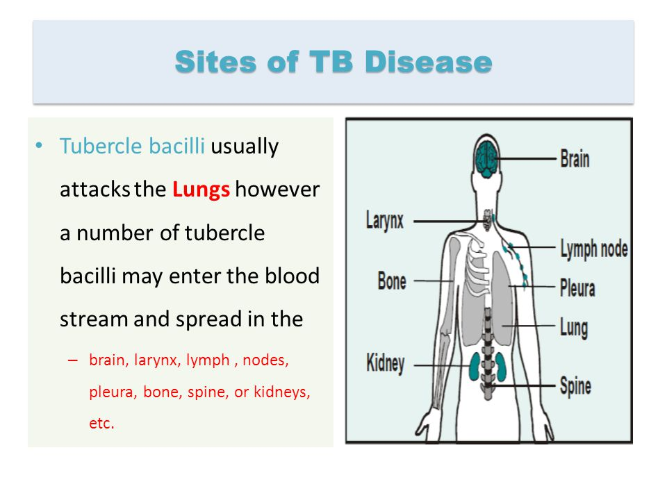 Sites of TB Disease Tubercle bacilli usually attacks the Lungs however a number of tubercle bacilli may enter the blood stream and spread in the.