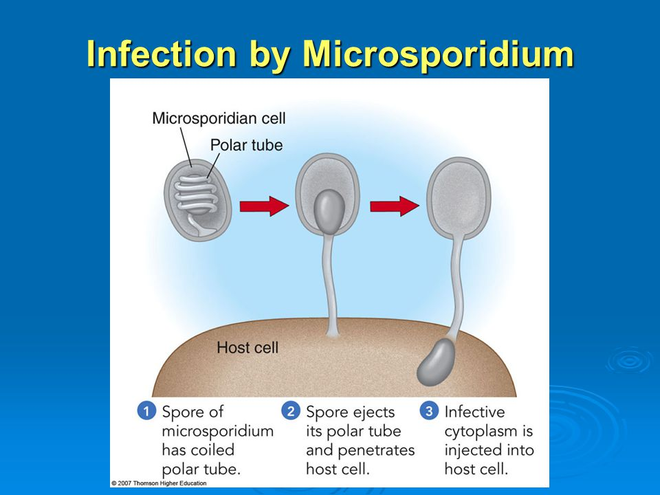 Infection by Microsporidium