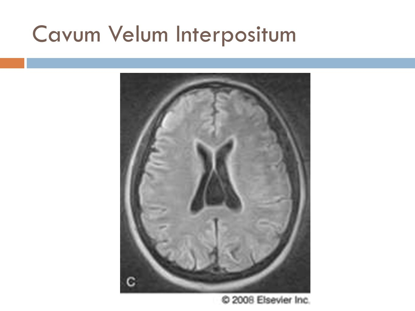Anatomy of the Cerebral Ventricles - ppt download