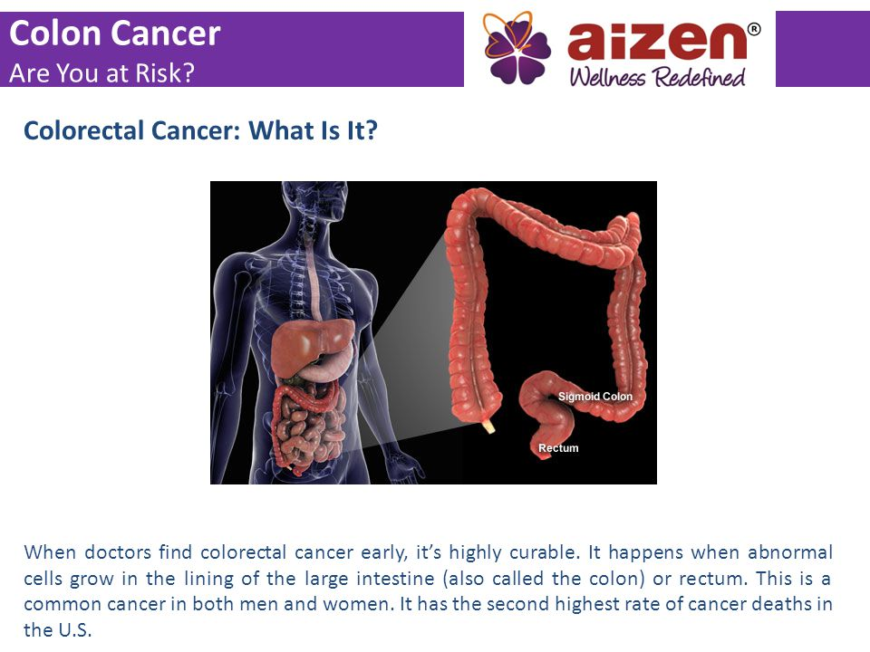 Colon Cancer Are You At Risk Colorectal Cancer What Is It Ppt Video Online Download