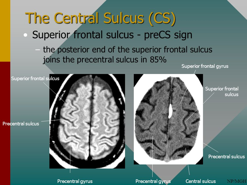 Normal Cortical Anatomy - ppt video online download
