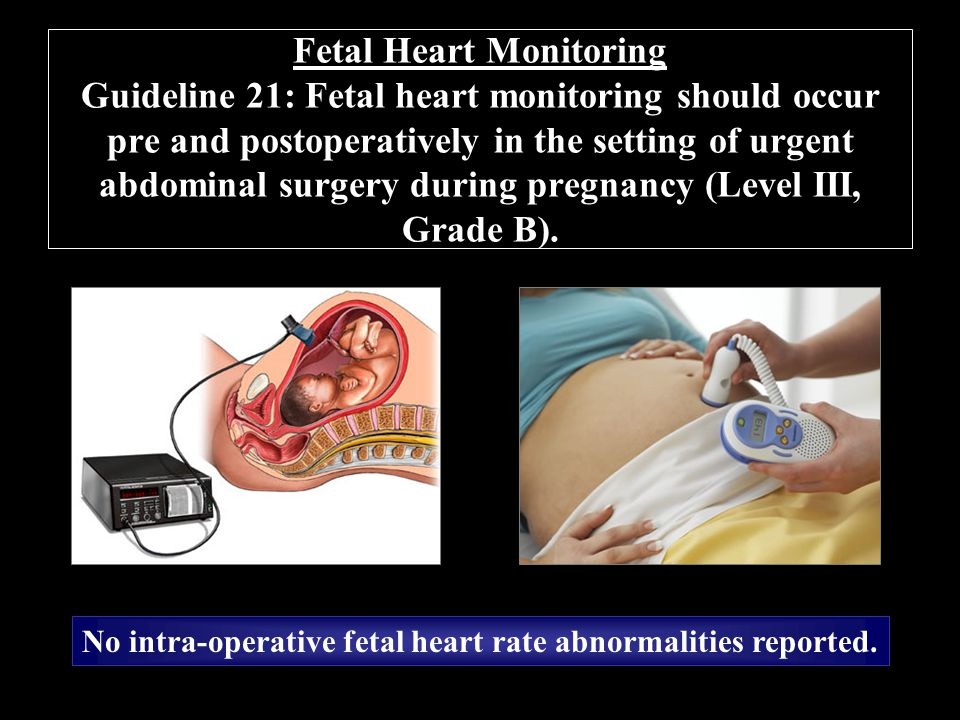 Fetal Heart Rate Monitoring during Pregnancy