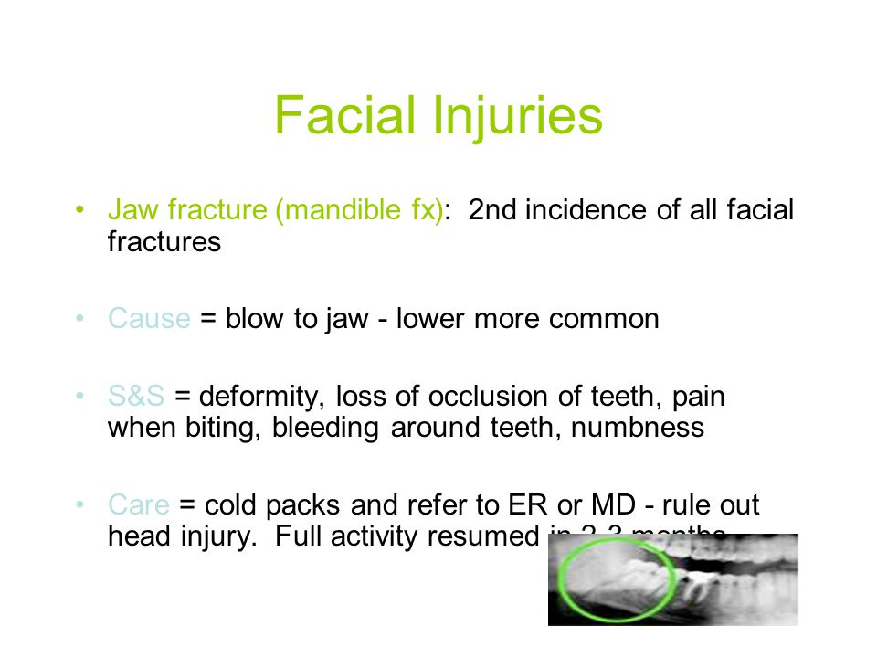 Facial Injuries Jaw fracture (mandible fx): 2nd incidence of all facial fractures. Cause = blow to jaw - lower more common.