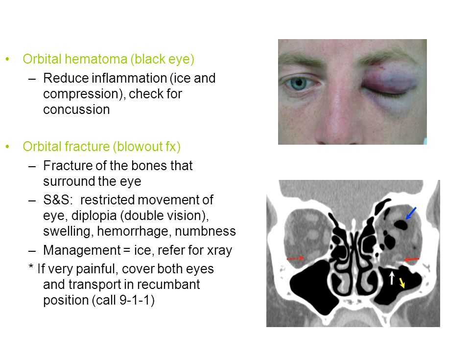 Orbital hematoma (black eye)