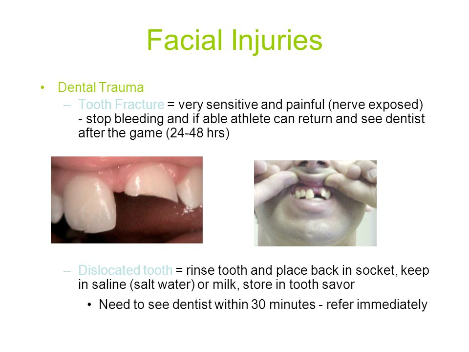 Facial Injuries Dental Trauma