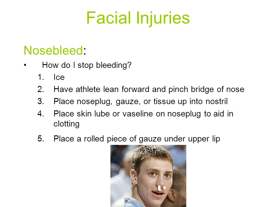 Facial Injuries Nosebleed: How do I stop bleeding Ice