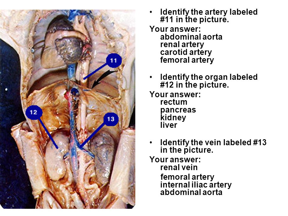 Fetal Pig Intestines Labeled