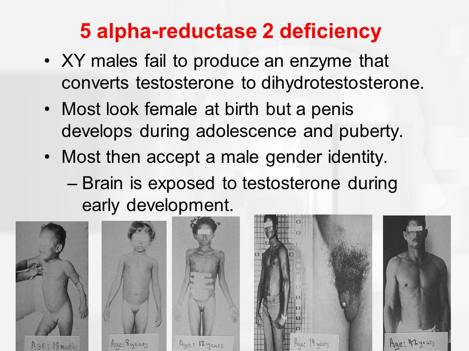 5 Alpha Reductase 2 Deficiency