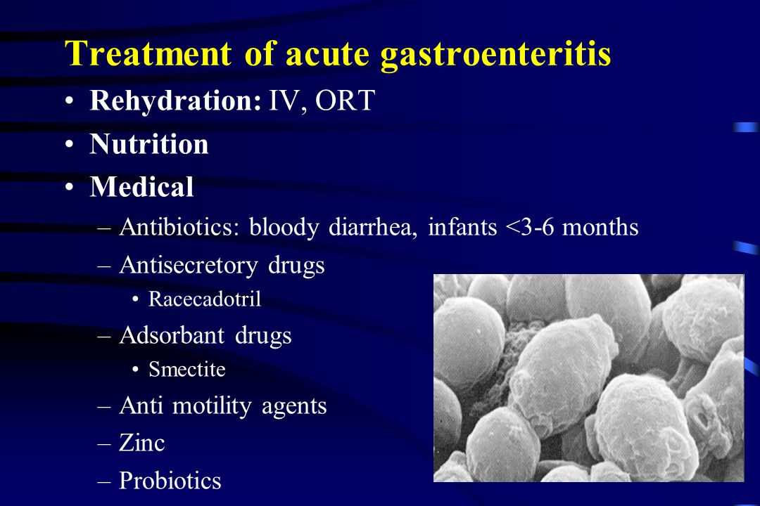 acute gastroenteritis in ch u0130ldren