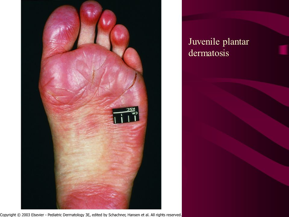 For plantar dermatitis in adults