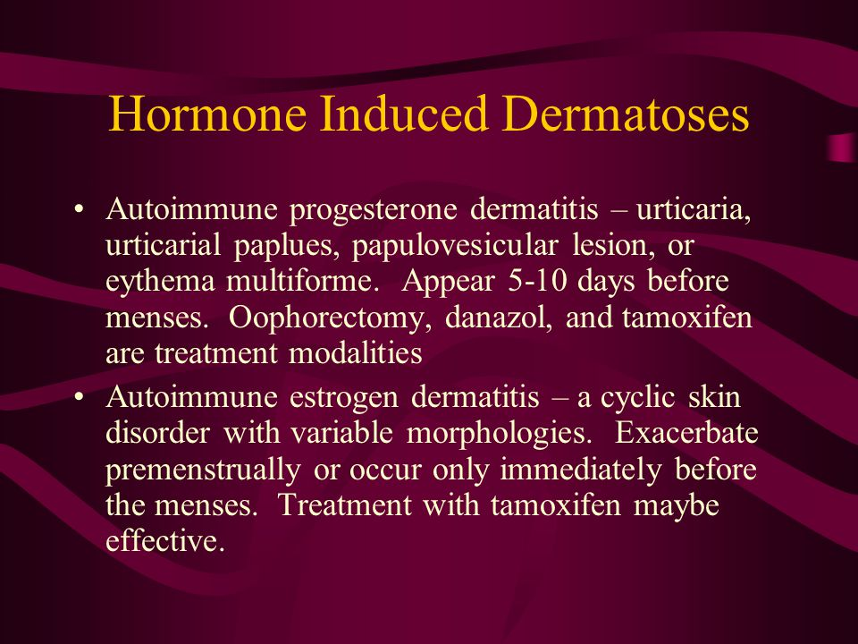 Atopic Dermatitis, Eczema, and Noninfectious Immunodeficiency