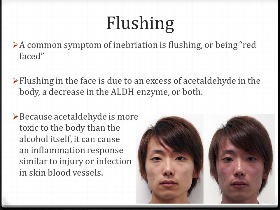 Facial flushing due to alcohol use
