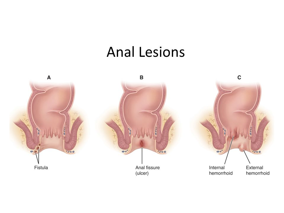 Photos of anal lesions
